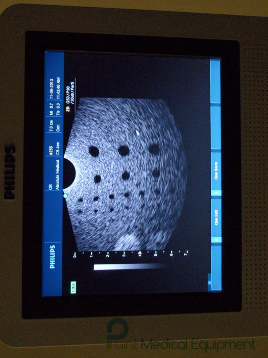 philips-hd3-ultrasound-machine-setrefurbished.JPG